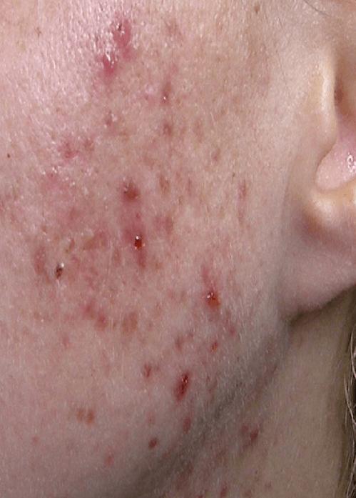 простудные прыщи на щеках