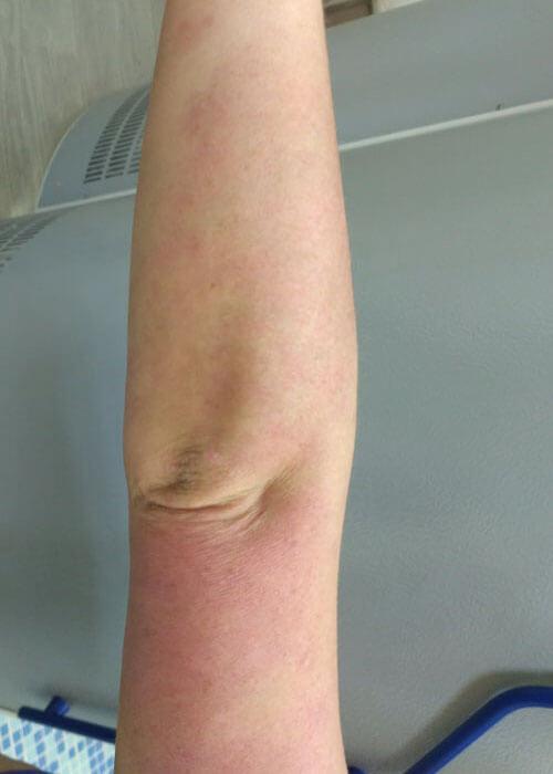 Аллергический дерматит причины возникновения