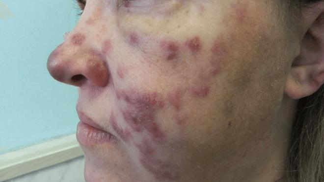 Саркома капоши при вич инфекции 17
