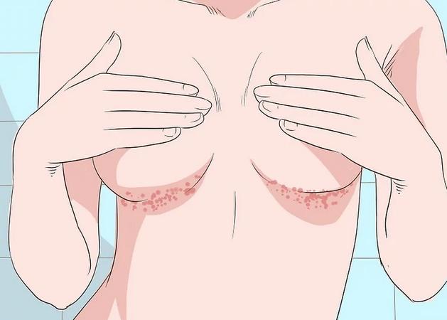 Сыпь на теле под грудью 23