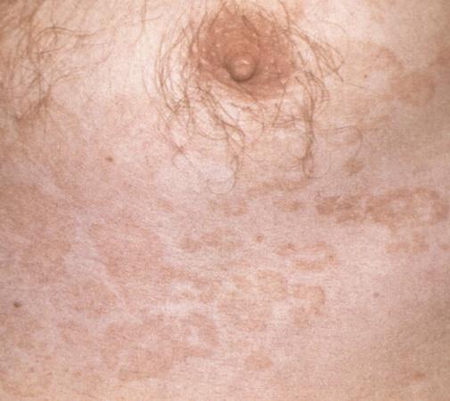 Сыпь на теле под грудью 24