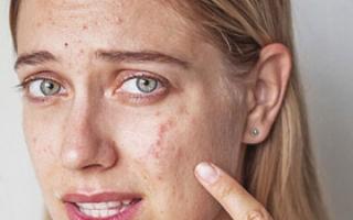 Что делать при аллергии на косметику
