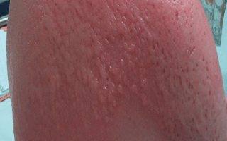 Эффективное лечение аллергии на солнце у детей и взрослых