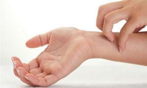 Крапивница на руках: причины проявления, симптомы, способы лечения