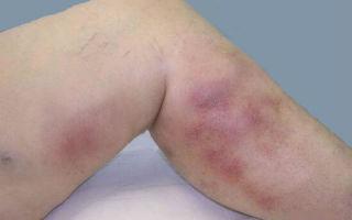 Эффективное лечение венозного дерматита на ногах