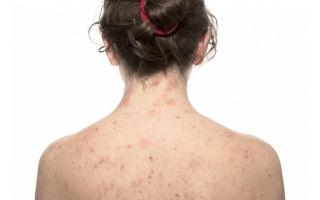 Первичные элементы кожной сыпи как признак болезни