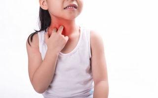 О чем сигнализирует сыпь на груди у ребенка
