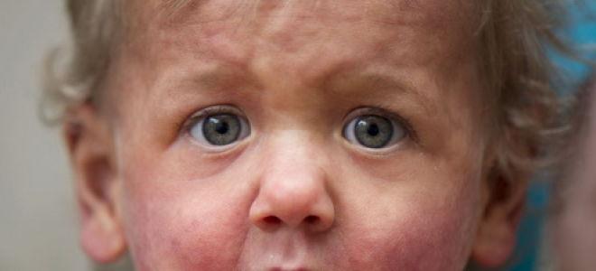 Мастоцитоз у детей: почему он возникает и как от него избавиться