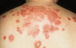 Себорейная пузырчатка: клиническая картина, лечение и профилактика