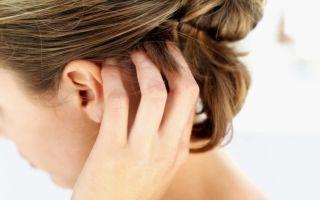 Чешется голова: возможные причины