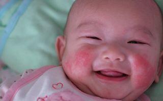 Аллергия у новорожденных на лице