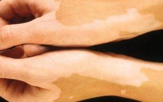 Эффективные методы лечения пигментных пятен на руках
