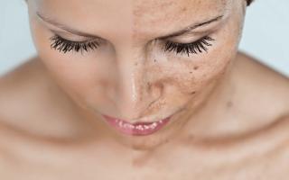 Что важно знать о нарушении пигментации кожи
