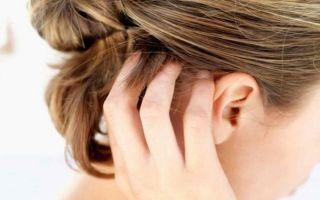 Кожа головы шелушится и чешется: причины и лечение