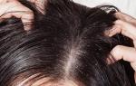 Себорея кожи головы и способы ее лечения в домашних условиях