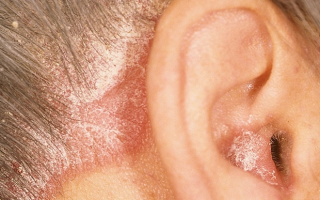Что использовать для лечения себореи в ушах