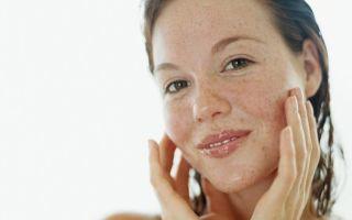 Пигментные пятна на коже: самые популярные методы лечения