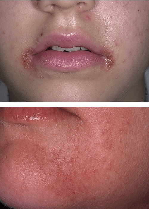 периоральный дерматит на уголках губ и подбородке