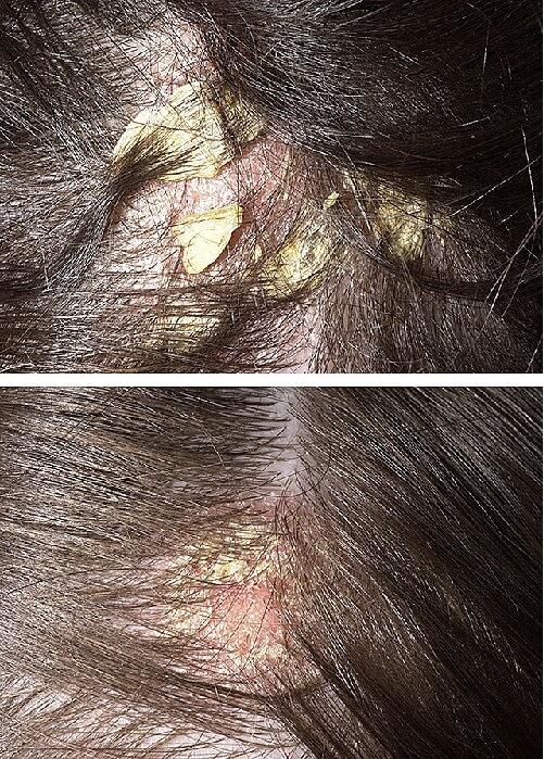 конечная стадия псориаза на голове