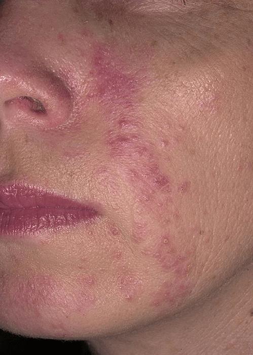 периоральный дерматит на щеках