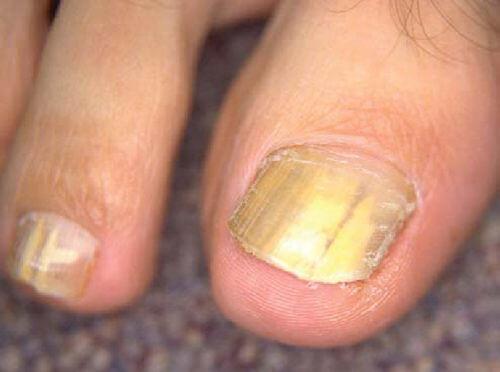 трихофития на ногтях