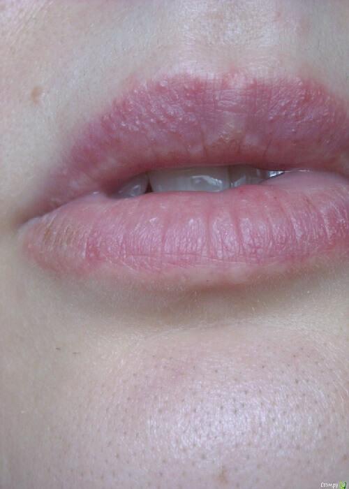 солнечная аллергия на губах
