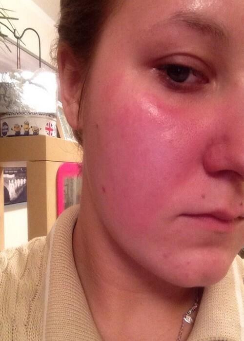 солнечная аллергия на лице