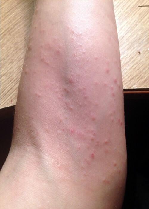 солнечная аллергия на руке