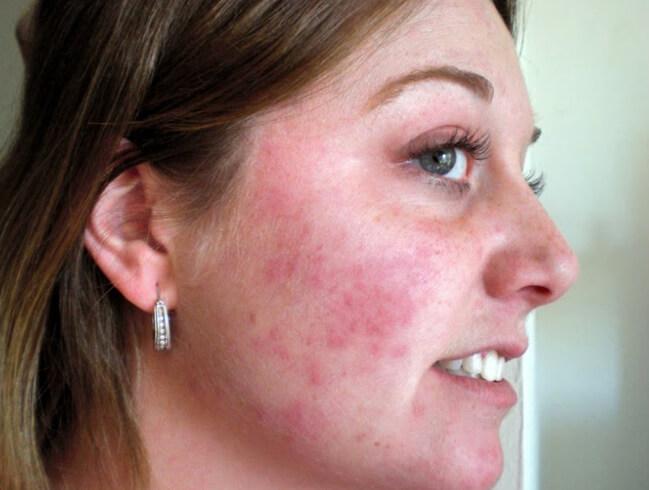 аллергия на мед на щеках