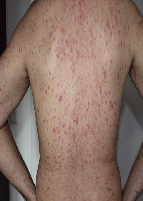 аллергия на алкоголь на спине