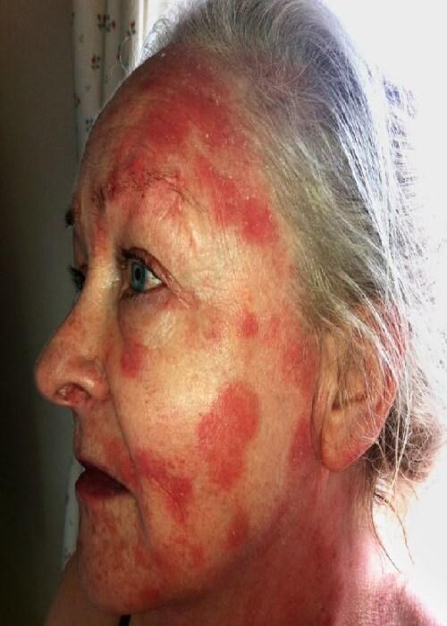аллергия на алкоголь на лице