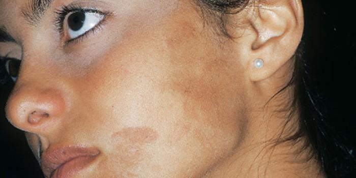 пигментные пятна на коже лица
