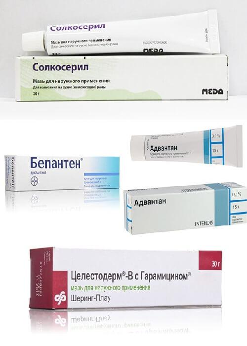 мази от атопического дерматита