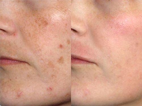 пигментация на лице до и после