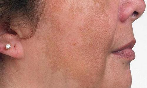 пигментные пятна на лице у женщины