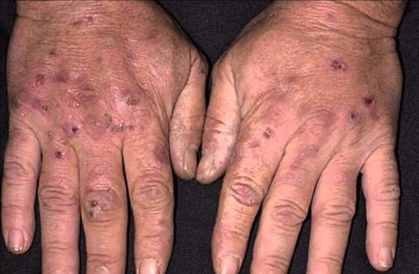 болезнь гюнтера на руках
