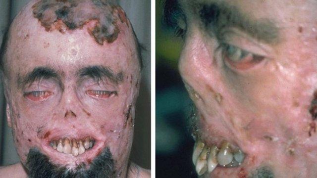 болезнь гюнтера
