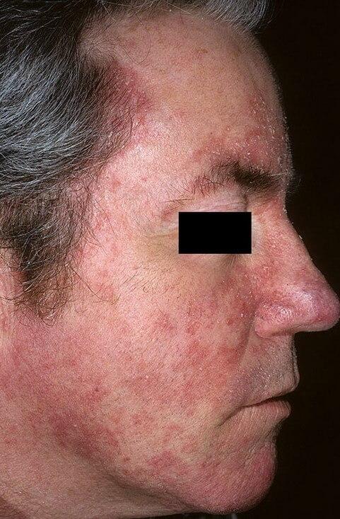 себорейный дерматит на лице у взрослого