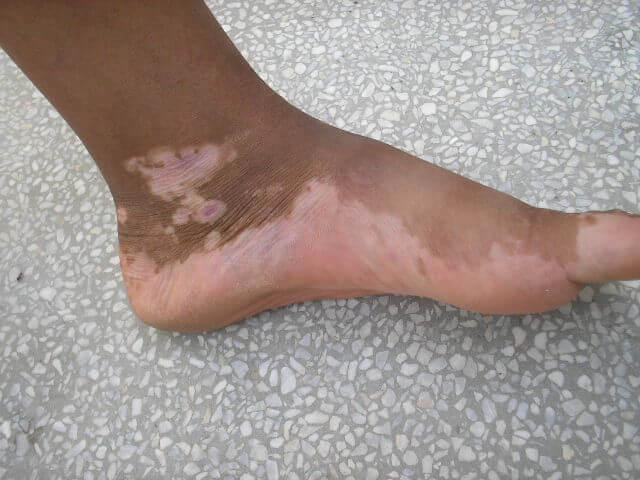 лайкодерма на ноге