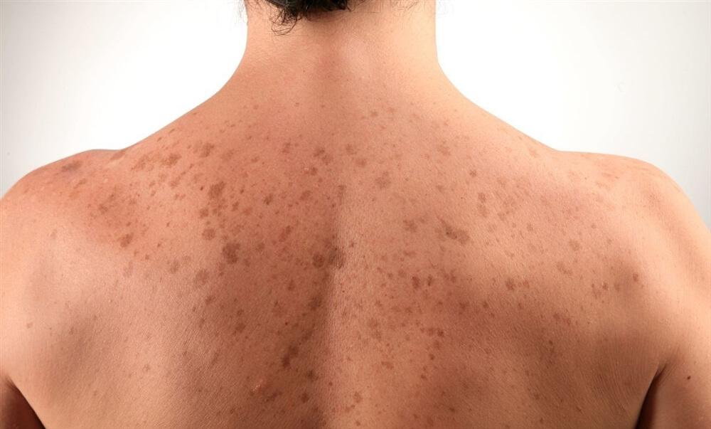 пигментация на спине