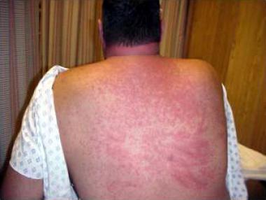 токсическая эритема на спине