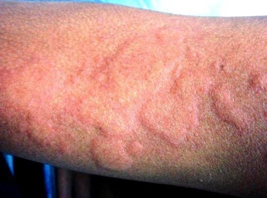 токсическая эритема на руке