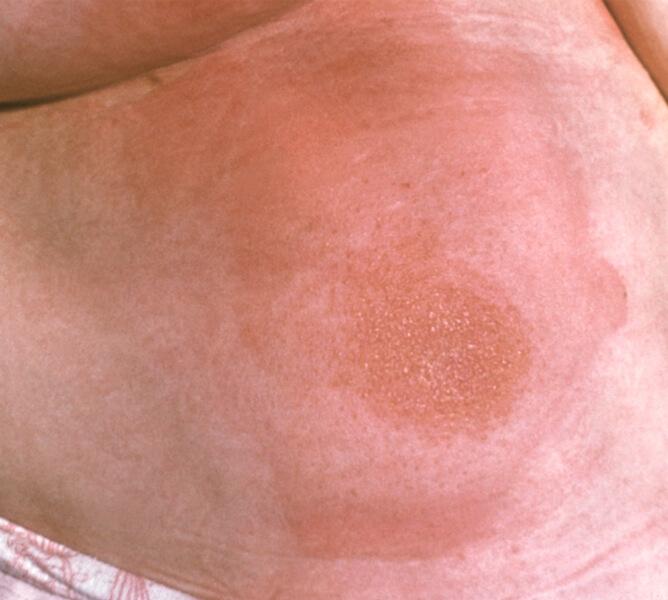 атопическая аллергия на животе