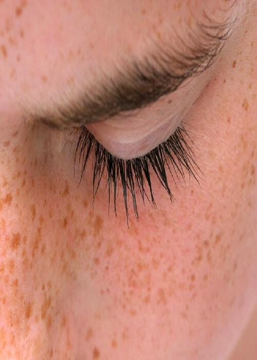 лентиго на лице