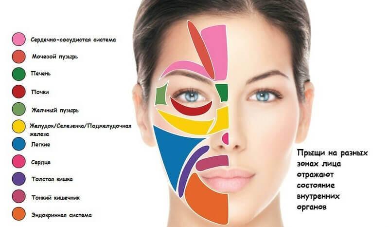 Аллергические прыщи локализация на лице