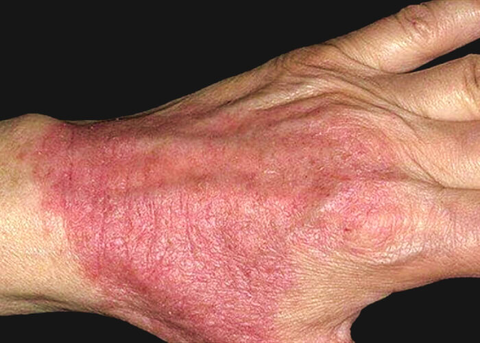 дерматит на руке