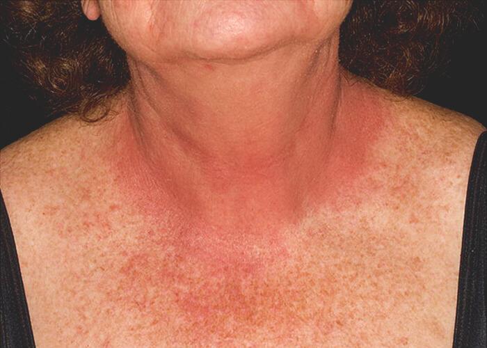 аллергический контактный дерматит на груди