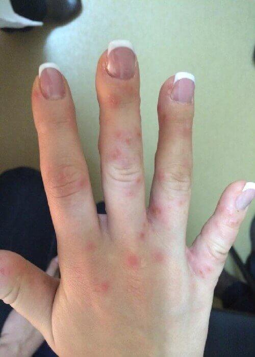аллергический контактный дерматит на руке