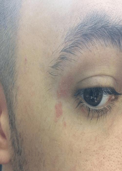 аллергический дерматит у глаза