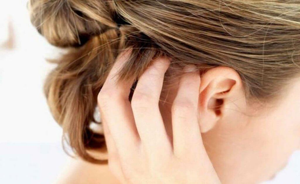 кожа головы чешется